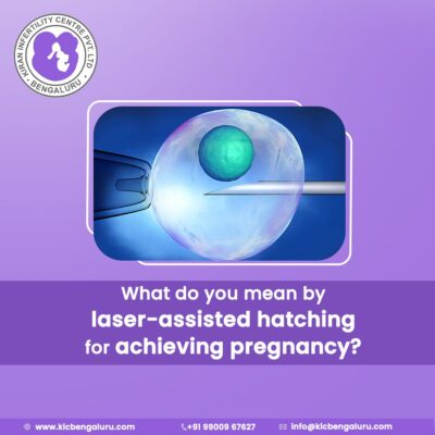 What do you mean by laser-assisted hatching for achieving pregnancy?